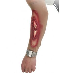 Cicatriz Herida brazo latex