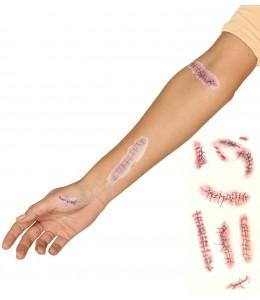 Tatuaje Cicatrices